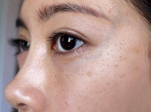 Celestolite Why You Should Be Wearing Sunscreen Every Single Day dark spots